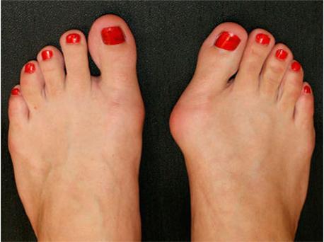 962579 - ถุงเท้า Valgosocks รักษาหัวแม่เท้าเอียง ตาปลา เท้าแบน เท้าผิดรูป รักษาได้ง่ายโดยไม่ต้องผ่าตัด