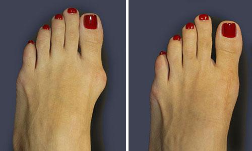 Valgosocks2 - ถุงเท้า Valgosocks รักษาหัวแม่เท้าเอียง ตาปลา เท้าแบน เท้าผิดรูป รักษาได้ง่ายโดยไม่ต้องผ่าตัด