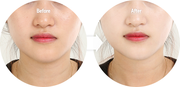 leilani wearwhitefacewhiteningfinisher beforeafter - Whitening Day Cream ตัวช่วยปรับผิวขาวกระจ่างใส ไม่หมองระหว่างวัน