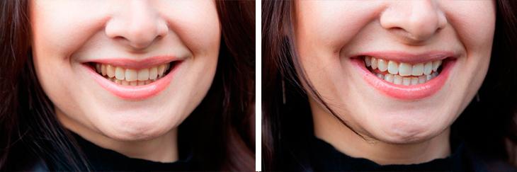 1 2 - ระวังโดนหมอฟันหลอกทำวีเนียร์! – Denta Seal ยาสีฟันฟันสวย ซ่อมแซม เคลือบฟัน ปรับสี ภายในหลอดเดียว